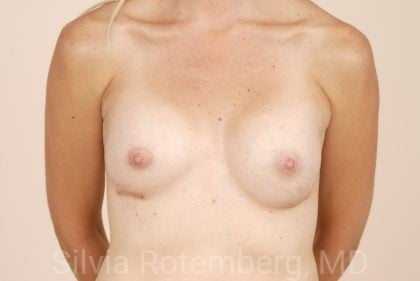 Breast Augmentation Before & After Patient #379