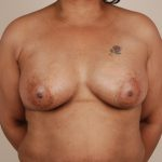 Breast Augmentation Before & After Patient #396