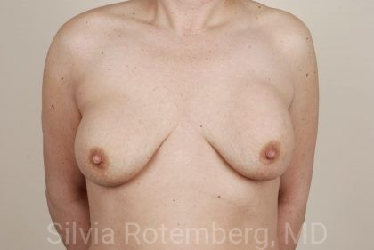 Breast Augmentation Before & After Patient #399