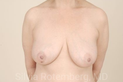 Breast Reconstruction Before & After Patient #414