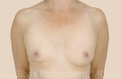 Breast Reconstruction Before & After Patient #417
