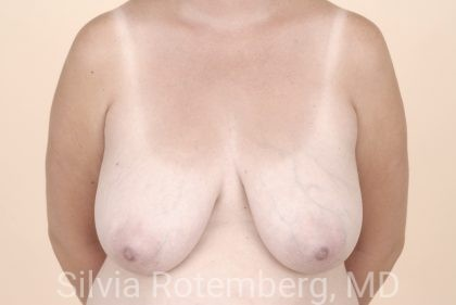Breast Reduction Before & After Patient #601