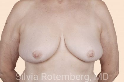 Breast Reduction Before & After Patient #615