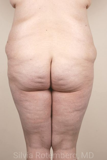 Tummy Tuck Before & After Patient #499