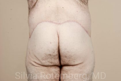 Tummy Tuck Before & After Patient #510