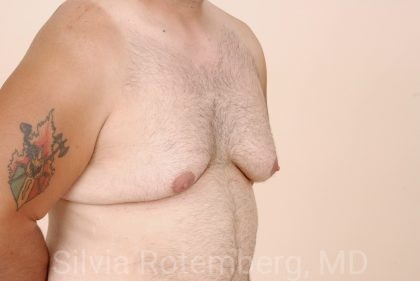 Male Breast Reduction Before & After Patient #424