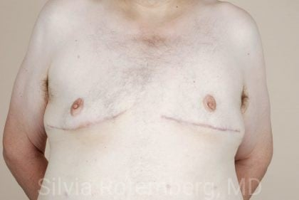 Male Breast Reduction Before & After Patient #429
