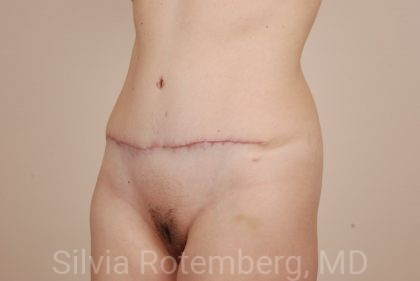 Tummy Tuck Before & After Patient #434