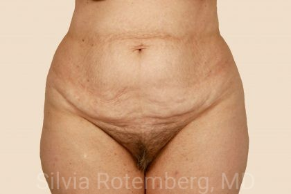 Tummy Tuck Before & After Patient #471