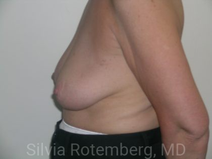 Breast Reduction Before & After Patient #608