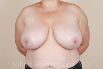Breast Reduction Before & After Patient #547