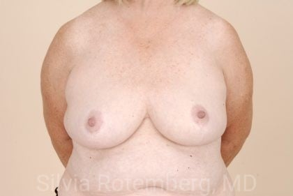 Breast Reduction Before & After Patient #552