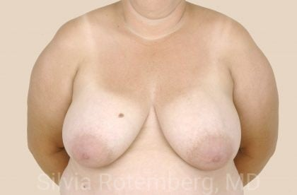 Breast Reduction Before & After Patient #621