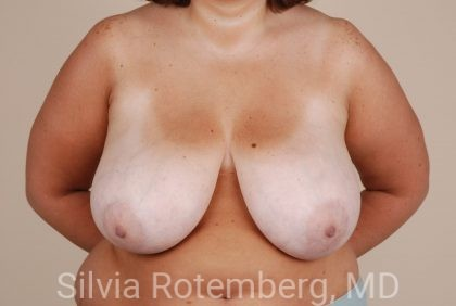 Breast Reduction Before & After Patient #626