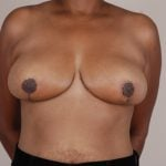 Breast Reduction Before & After Patient #557