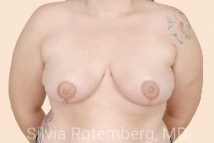 Breast Reduction Before & After Patient #632