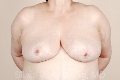 Breast Reduction Before & After Patient #642