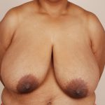 Breast Reduction Before & After Patient #648
