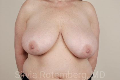 Breast Reduction Before & After Patient #635