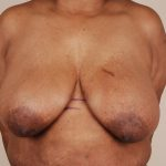 Breast Reduction Before & After Patient #653