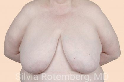 Breast Reduction Before & After Patient #657