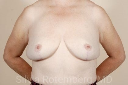 Breast Reduction Before & After Patient #562