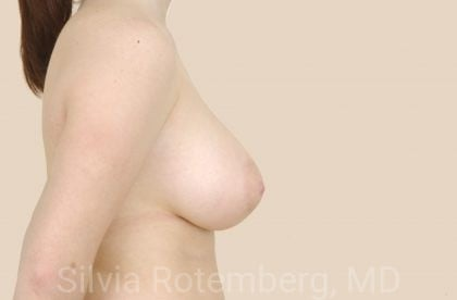 Breast Reduction Before & After Patient #565