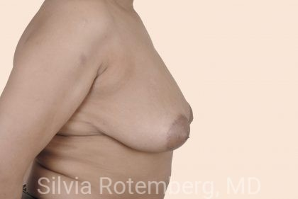 Breast Reduction Before & After Patient #680