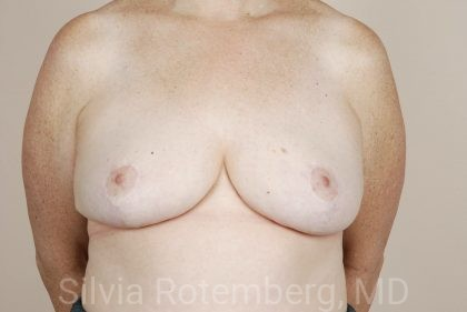 Breast Reduction Before & After Patient #685