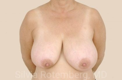 Breast Reduction Before & After Patient #690