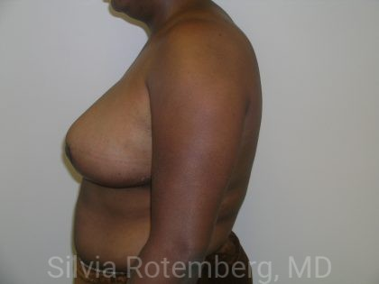 Breast Reduction Before & After Patient #575