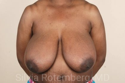 Breast Reduction Before & After Patient #695