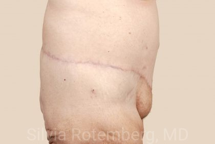 Tummy Tuck Before & After Patient #486