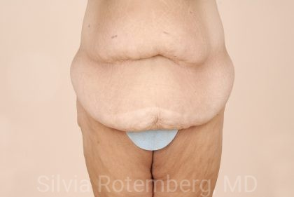 Tummy Tuck Before & After Patient #522