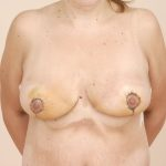Breast Lift Before & After Patient #358