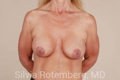Breast Lift Before & After Patient #363