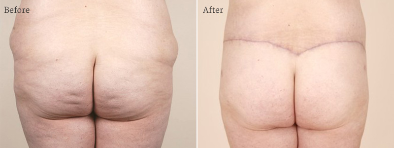 Best Tummy Tuck Miami | Rotemberg Plastic Surgery