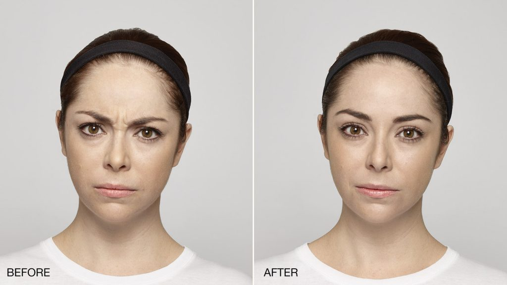 Best botox miami rotemberg plastic surgery candidates for botox solutioingenieria Images