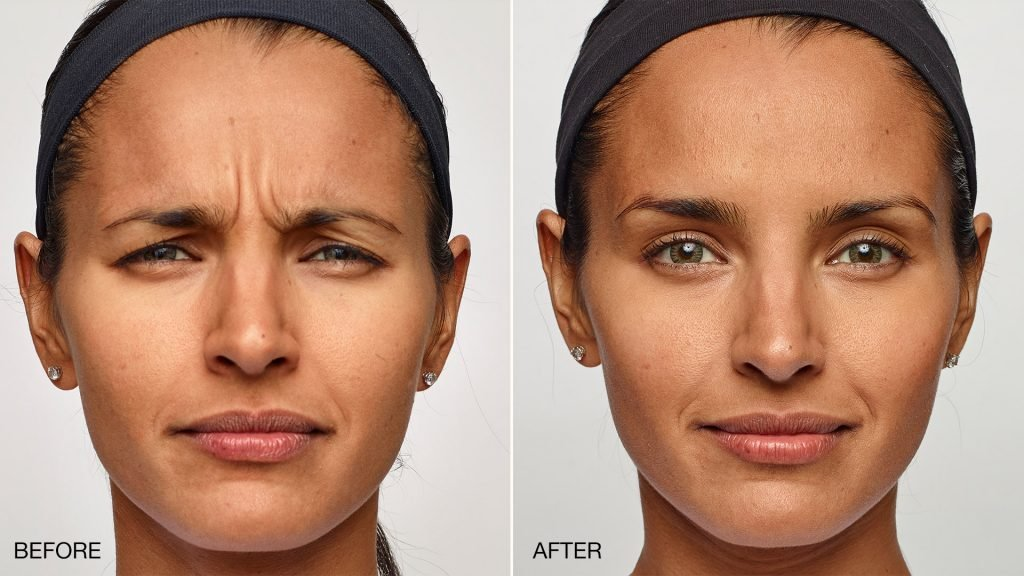 Facial spasms help with botox